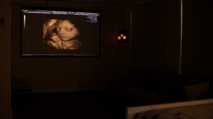 InfantSee4D Ultrasound in Fairfax, Virginia