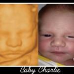 3D Ultrasound & Baby