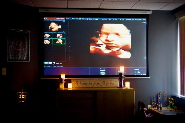 PregnantSEE Ultrasound